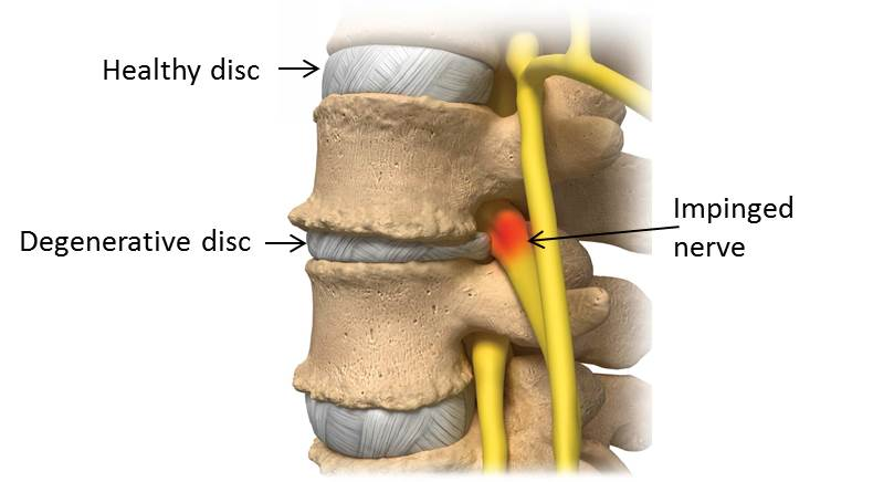 Degenerative Disc Disease and Lower Back Pain